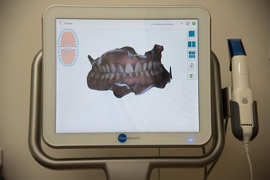 Itero Full Mouth scan screen